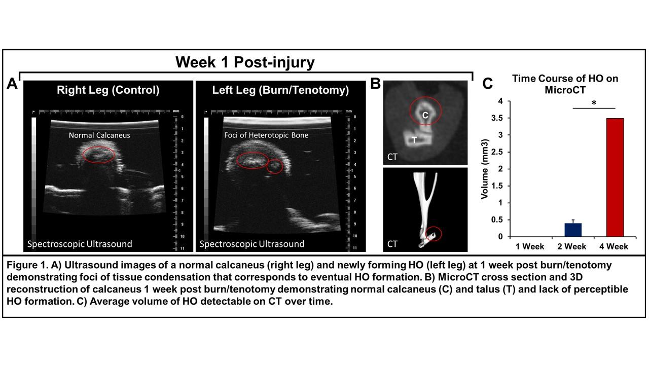 PSRC - Spectroscopic Ultrasound Visualizes Early Heterotopic