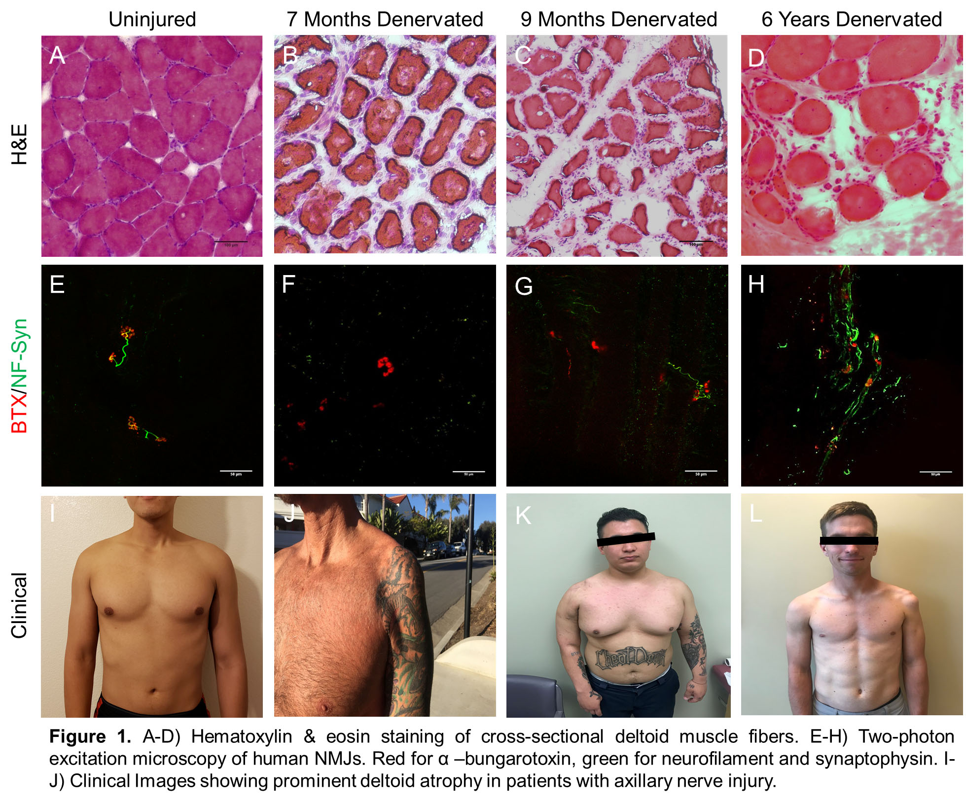 PSRC - Preoperative Biopsy of Denervated Muscles May be a
